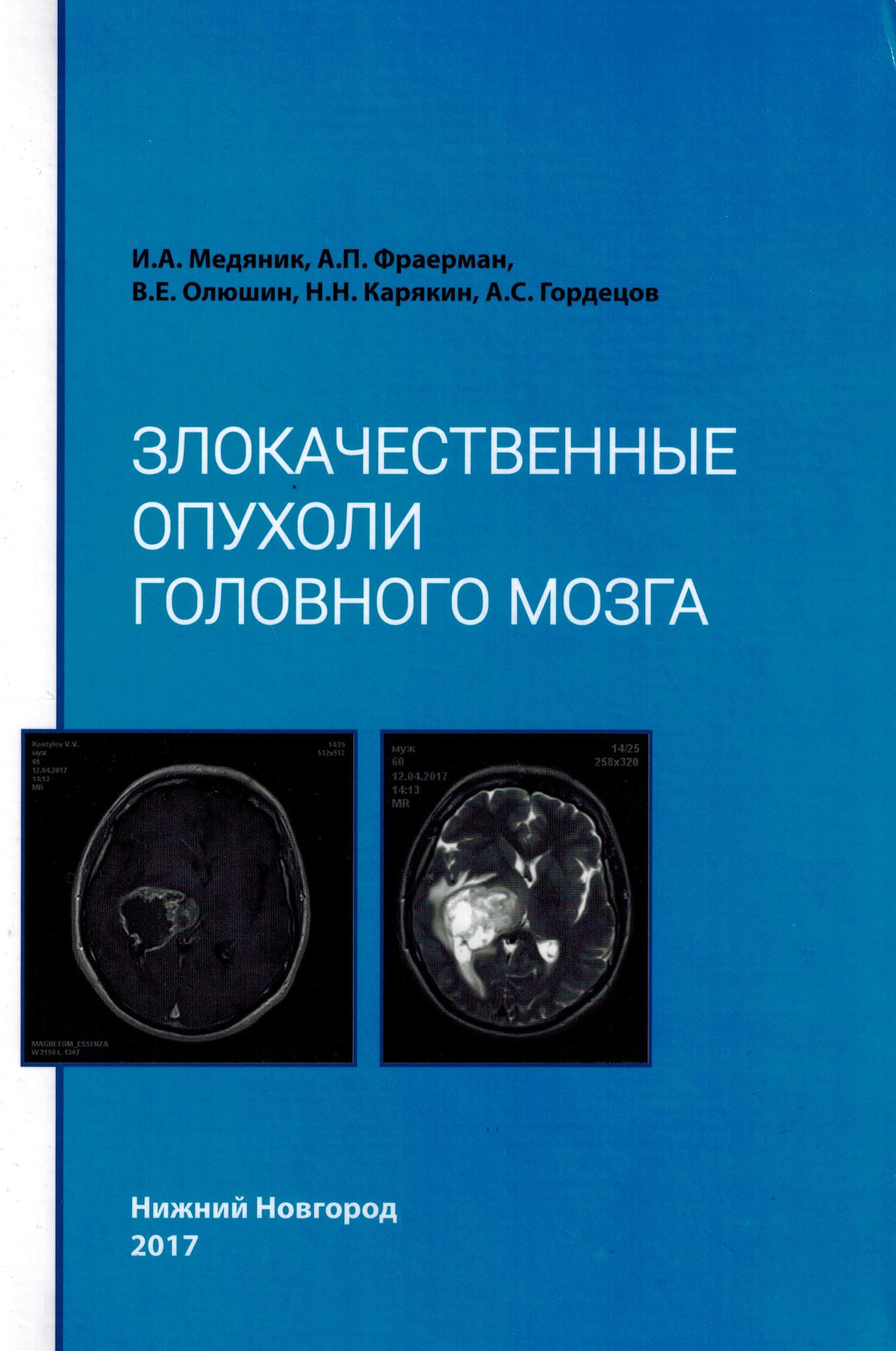 Лучшие книги по нейрохирургии Злокачественные опухоли головного мозга zlokachest_opux.jpg