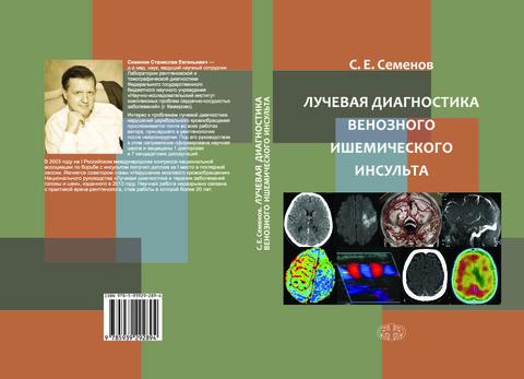 Лучевая диагностика венозного ишемического инсульта // С.Е. Семенов