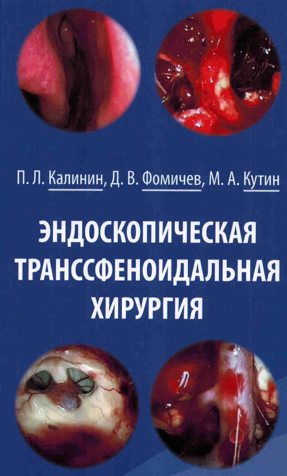 Новинки Эндоскопическая транссфеноидальная хирургия endoskop_transsf_hir.jpg