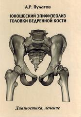 Юношеский эпифизеолиз головки бедренной кости