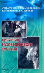 Хирургия тазобедренного сустава