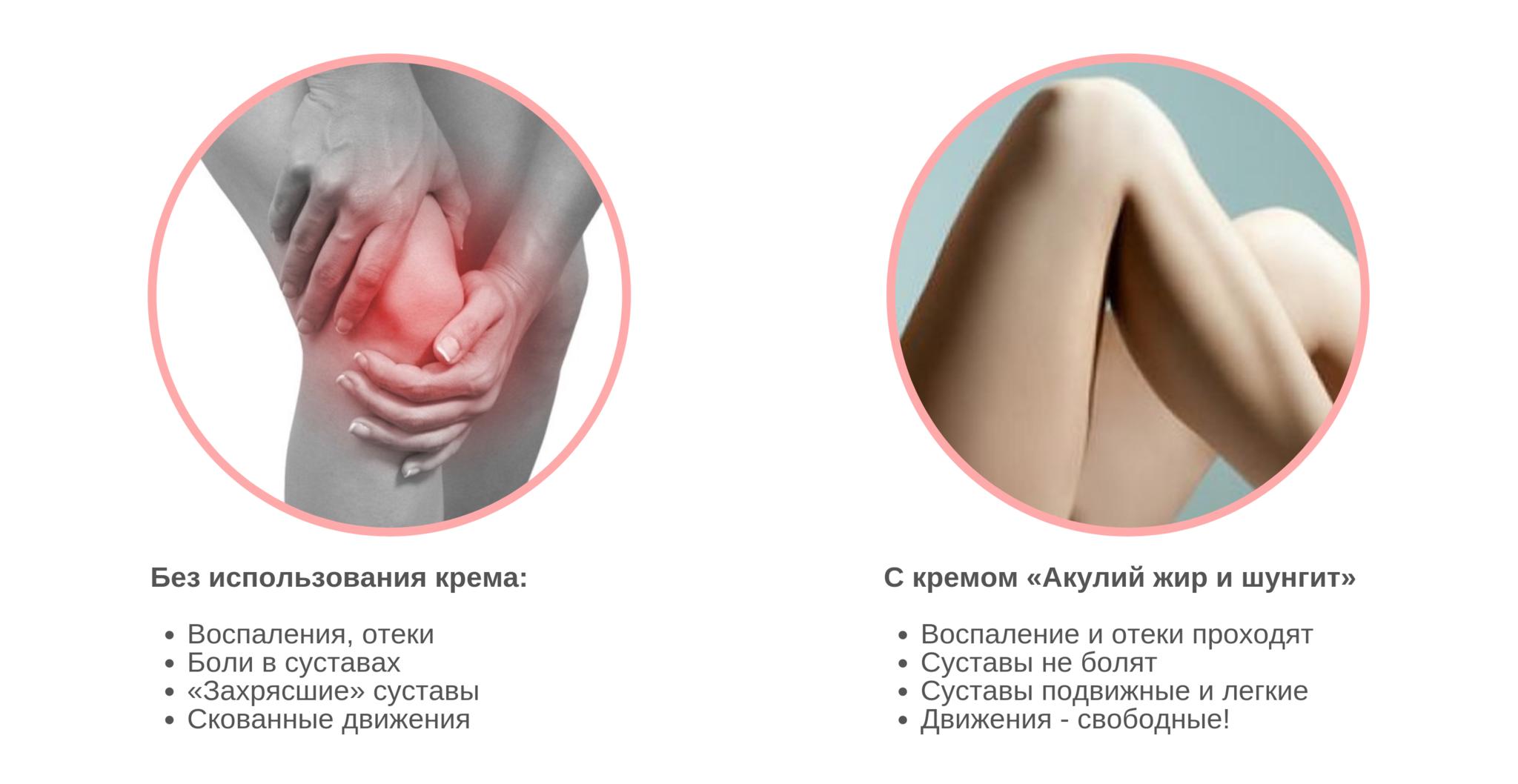 Акулий жир и Шунгит крем для тела в области суставов «Акулья сила», 75мл