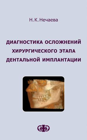 Диагностика осложнений хирургического этапа дентальной имплантации // Нечаева Н.К.