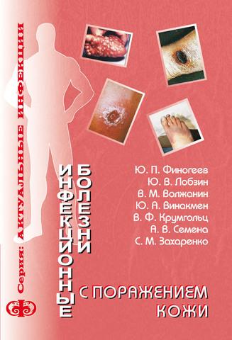 Инфекционные болезни с поражением кожи (электронная версия в формате PDF) /  Лобзин Ю.В., Финогеев Ю.П., Волжанин В.М.