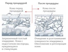 Косметологический комбайн ULTRA CAVI SONIC