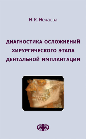Диагностика осложнений хирургического этапа дентальной имплантации // Нечаева Н.К.  (электронная версия в формате PDF)
