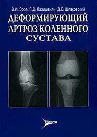 Конечности Деформирующий артроз коленного сустава Деформирующий_артроз_коленного_сустава.jpg