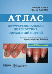Дифференциальная диагностика поражений ногтей