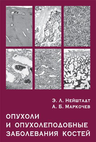 Опухоли и опухолеподобные заболевания костей / Нейштадт Э.Л., Маркочев А.Б.