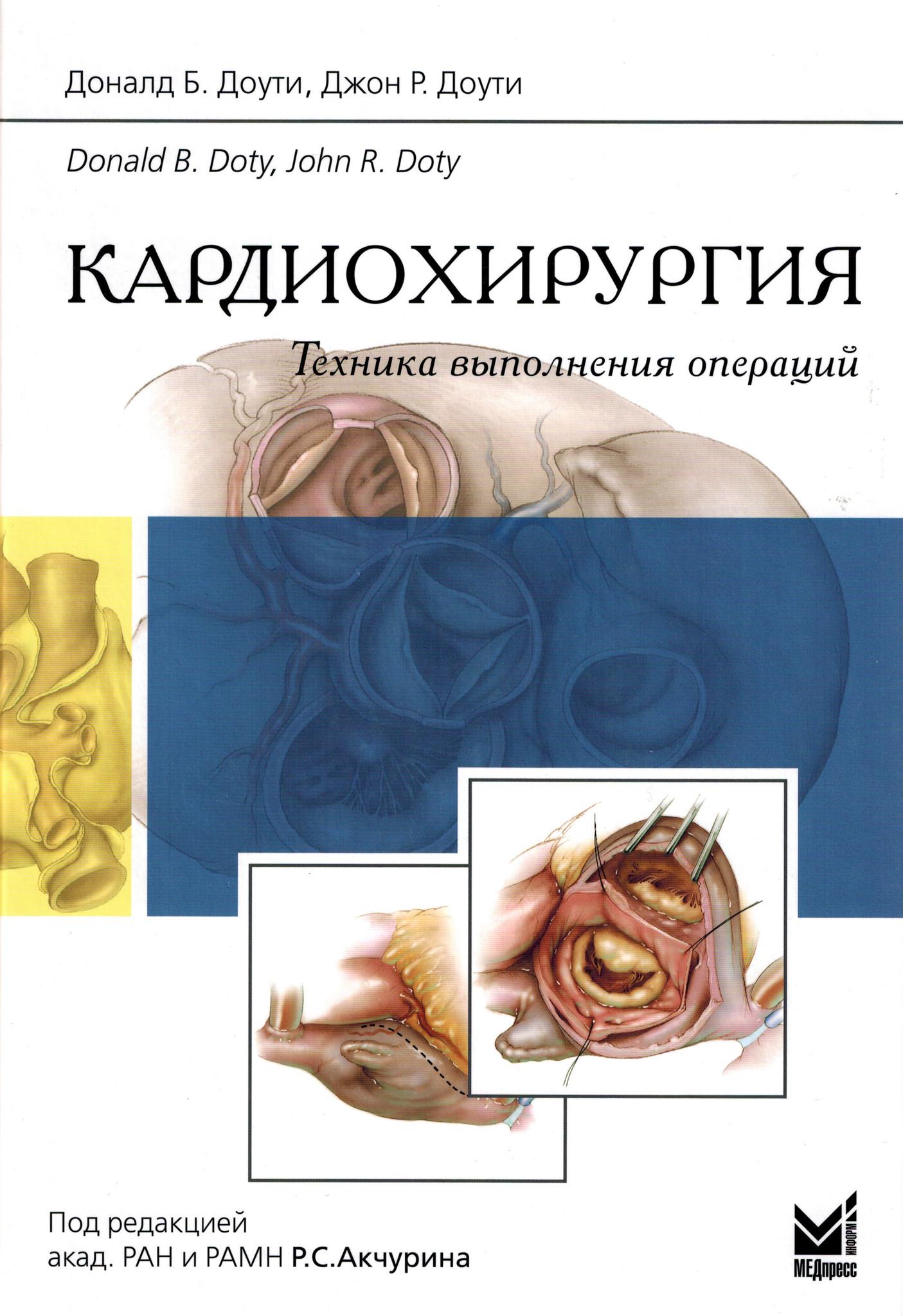 Новинки Кардиохирургия. Техника выполнения операций kh.jpg