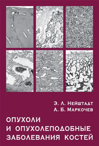 Опухоли и опухолеподобные заболевания костей / Нейштадт Э.Л., Маркочев А.Б. (Электронная версия в формате PDF)