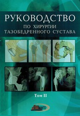 Руководство по хирургии тазобедренного сустава. Том 2