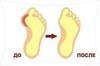 <p>Корректор большого пальца стопы Gelix с амортизирующей боковой н...