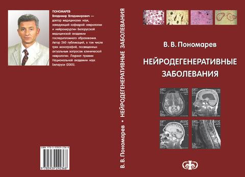 Нейродегенеративные заболевания / Пономарев В.В. (Электронная версия в формате PDF)