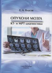Опухоли мозга КТ- и МРТ- диагностика