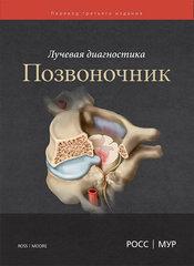 Лучевая диагностика. Позвоночник