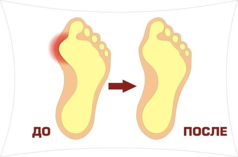 Мягкая защита сустава большого пальца ноги при наличии болезненных ...