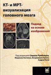 КТ и МРТ визуализация головного мозга. Подход на основе изображений
