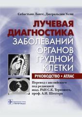 Лучевая диагностика заболеваний органов грудной клетки: руководство: атлас